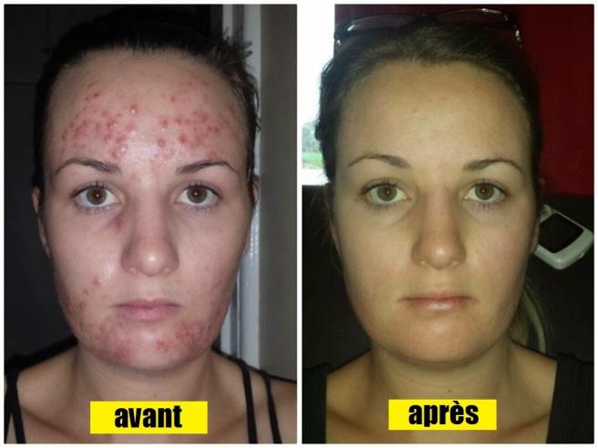 tolexine avis sur ce traitement anti acné | Instantly Ageless