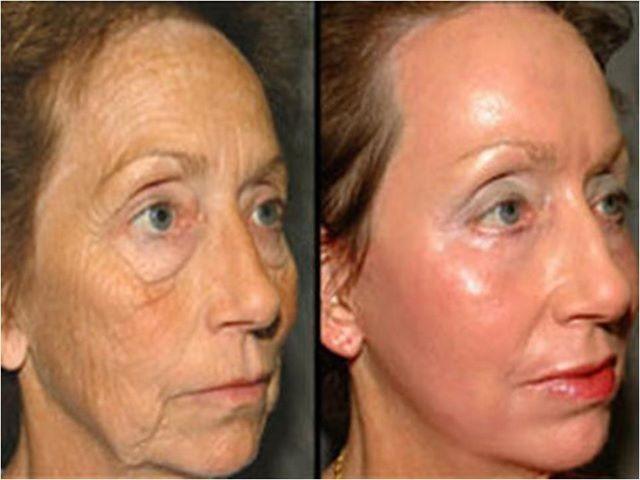 acn 30 40 ou 50 ans que faire traitement efficace contre l acn adulte instantly ageless. Black Bedroom Furniture Sets. Home Design Ideas